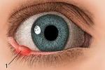 Все о причинах, симптомах и лечении ячменя на глазу