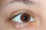 Быстрое лечение ячменя на глазу дома