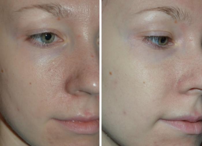 Кожа лица после применения альгинатной маски