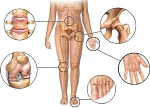 Показания для применения магнитотерапии