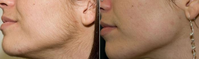 Результат лазерной эпиляции лица и шеи