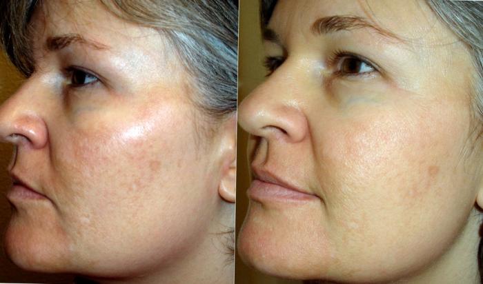 Результаты применения альгинатной маски для лица
