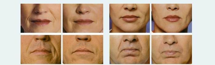 Результаты проведения контурной пластики лица