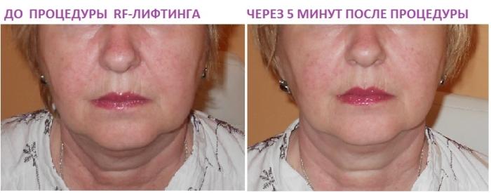 Результаты сразу после RF-лифтинга лица