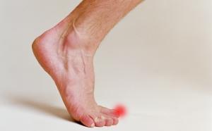 Симптоматика врастания ногтей на ногах