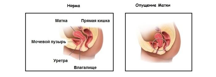 Что означает опущение матки и какое оно бывает