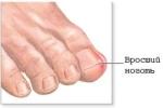 Как безопасно и быстро лечить вросший ноготь на ноге