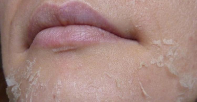 Фото шелушения после проведения желтого пилинга лица