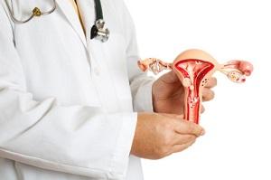 Интрамуральная миома матки - своевременное выявление и профилактика возникновения