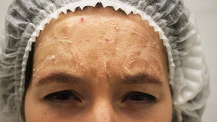 Лоб, шелушащийся после ретиноевого пилинга