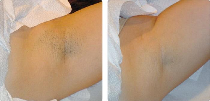 Насколько эффективна процедура Элос-эпиляции - результаты на фото