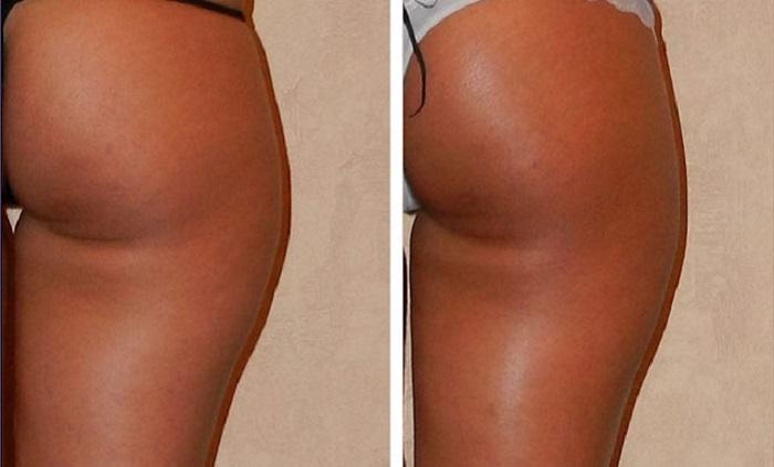 Антицеллюлитный лимфодренажный массаж - результаты до и после