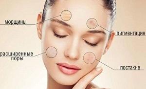 Чистка лица у косметолога - показания к применению механического пилинга