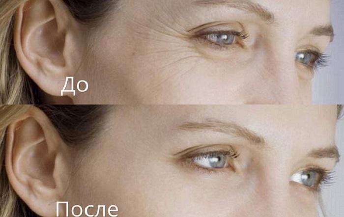 Как может преобразиться лицо после инъекций гиалуроновой кислоты