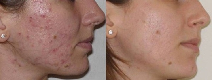 Результаты и эффект после проведения процедуры чистки лица