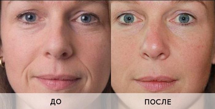 Результаты процедуры биоревитализации лица гиалуроновой кислотой