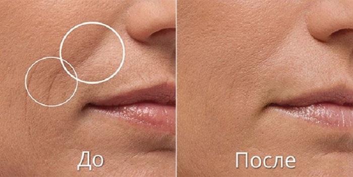Возможно ли избавиться от морщин на лице с помощью уколов гиалуроновой кислотой
