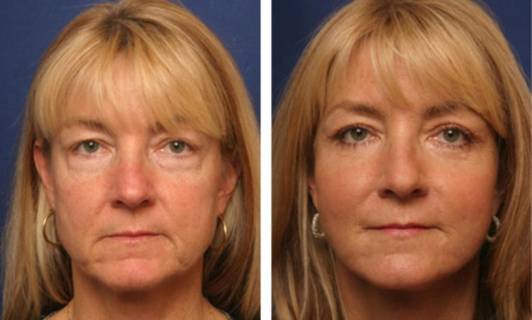 Биоармирование позволяет вернуть здоровый цвет лица
