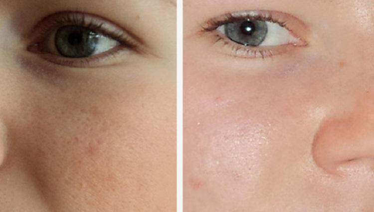 Что дает ультразвуковая чистка лица у косметолога