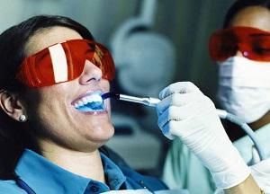 Как проходит процедура отбеливания зубов с помощью лазера