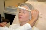 Массаж лица жидким азотом относится к криотерапии