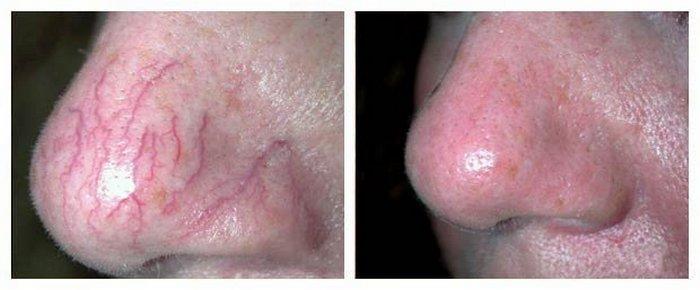 Методы лечения и избавления от купероза на лице
