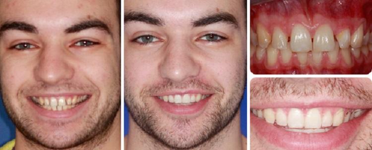 Отзывы и результаты пациентов после лазерного отбеливания зубов