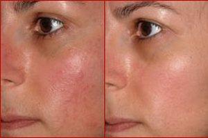Отзывы опробовавших лечение купероза на лице