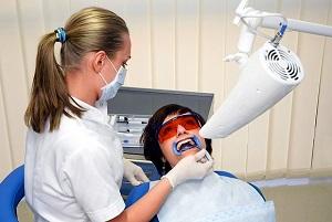 Преимущества и недостатки лазерного отбеливания зубов в сравнении с другими способами