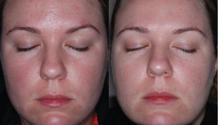 Причины и лечение купероза на лице