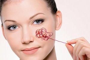 Распространенные причины появления купероза на лице