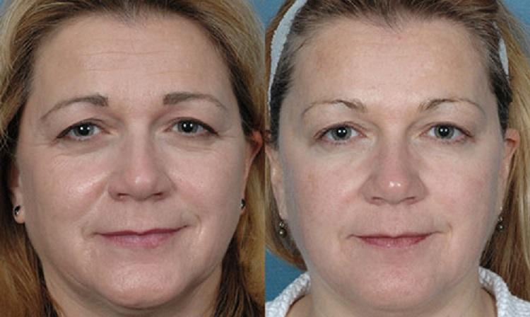 Результаты и эффект после процедуры омоложения кожи - биорепарации