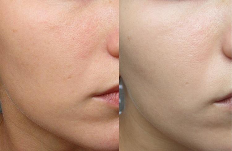 Результаты после использования аппарата Дарсонваль для лица