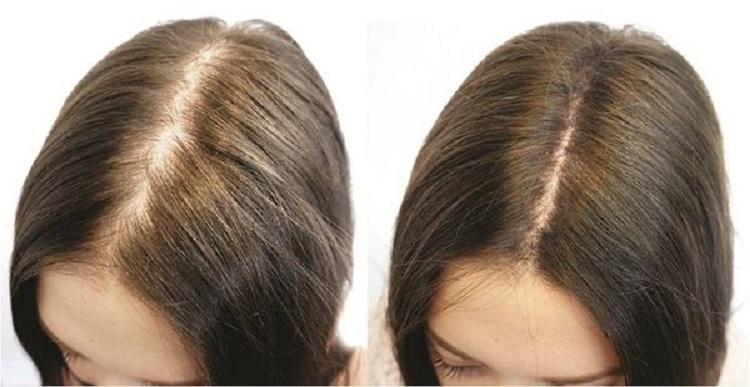 Результаты после использования аппарата Дарсонваль для роста волос