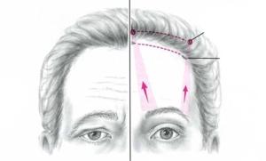 Техника малоинвазивного эндоскопического лифтинга лица