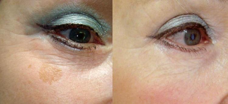 Фото до и после прохождения фотоомоложения