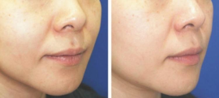 Фото до и после мезотерапии препаратом Дермахил HSR