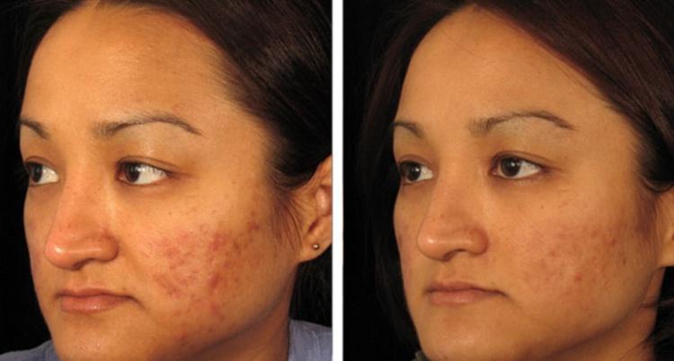Мезороллер прекрасно справляется с воспалениями на коже