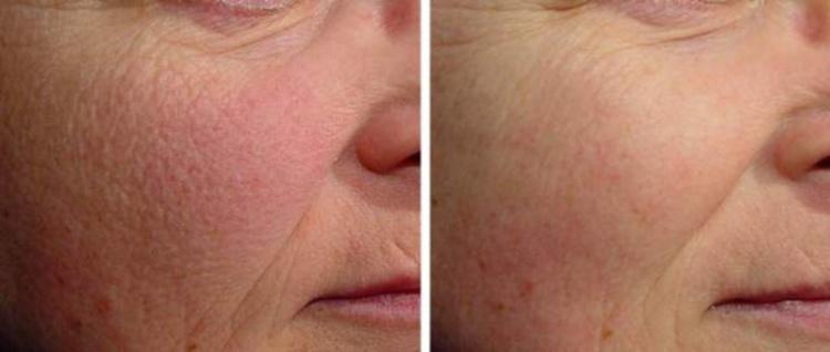 После процедуры фотоомоложения кожа становится свежей и упругой