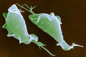 Вирусы и трихомонада может стать причиной кольпита у женщин