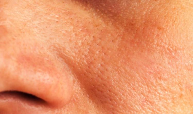 Жирный тип кожи лица