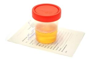 К какому врачу обращаться за диагностикой воспаления мочевого пузыря у женщин?