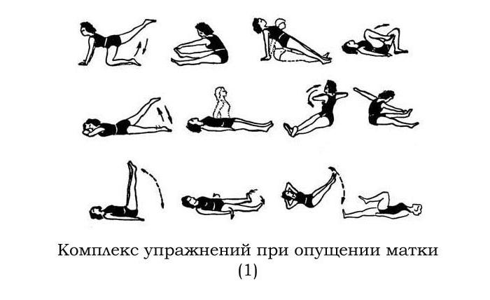 Упражнения Кегеля при опущении матки у женщин