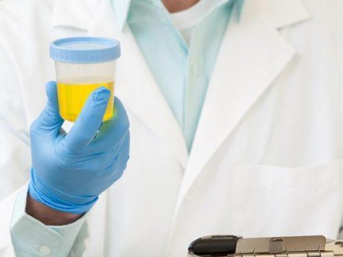 Белок в моче у мужчин — норма и патология