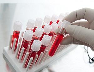 Лимфоциты в крови у женщин - норма, и причины повышения показателя
