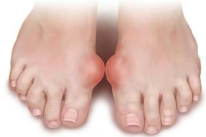 Ортопедическая обувь для женщин при вальгусной деформации стопы: при деформации первого пальца