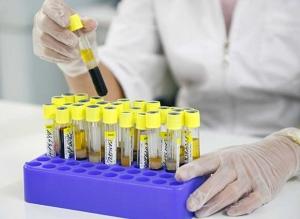 Эритроциты в моче у женщины повышены: каковы причины, как определить их уровень?
