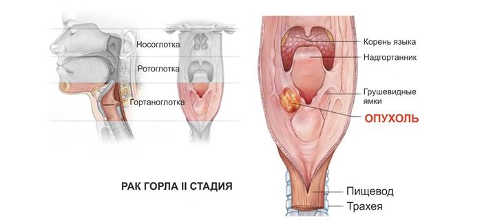 Симптомы рака горла и гортани у женщин: вторая стадия