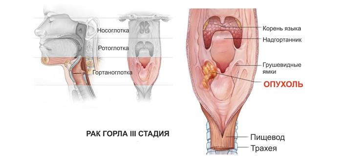 Симптомы рака горла и гортани у женщин: третья стадия