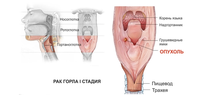 Симптомы рака горла и гортани у женщин: первая стадия